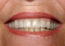 Dental Implants After Picture