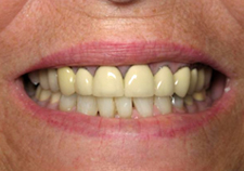 Dental Implants Before Picture