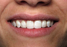Veneers After Picture